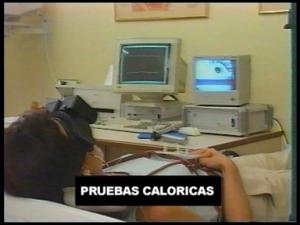 Prueba Calórica